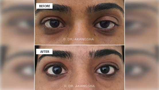 Upper Lid Ptosis Surgery