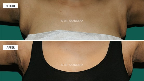 Axillary Breas-t in Female before and after photos