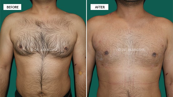 Male Chest/ Gynecomastia before and after photos