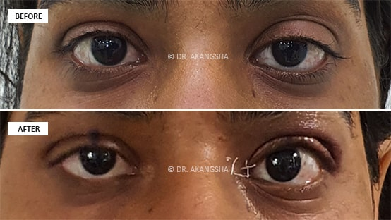 Upper Lid Ptosis Surgery before and after photos
