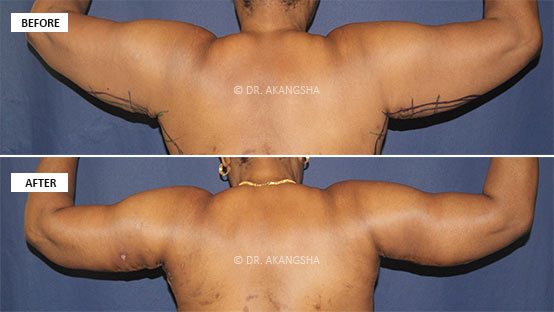 Arm lift Brachiplasty before and after photos