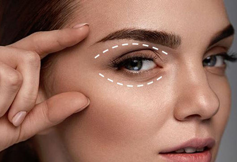 Eye Bag Removal in Jaipur